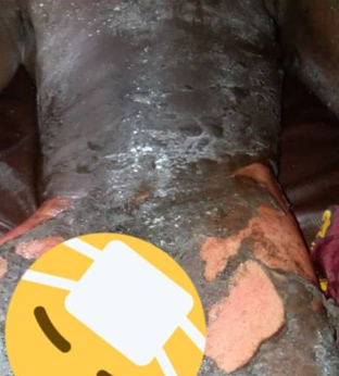 Graphic photos: Woman pours boiling water mixed with pepper on her husband