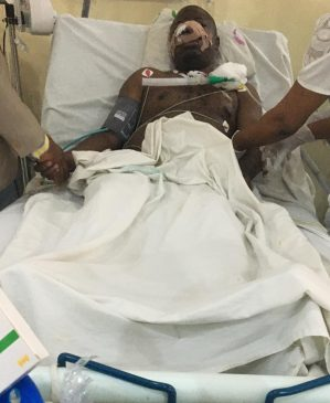 Woman attacks husband and cuts most of his body parts